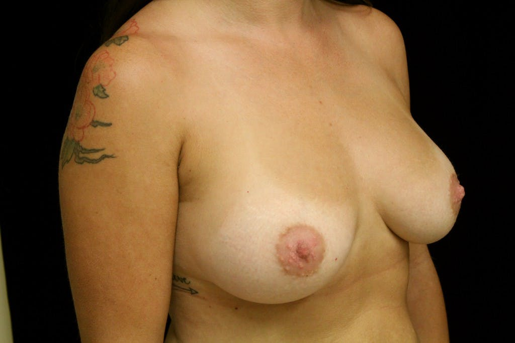 Breast Augmentation Gallery - Patient 39235565 - Image 2