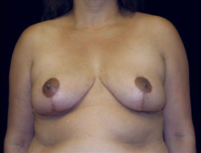 Breast Reduction T Incision Gallery - Patient 39235564 - Image 2