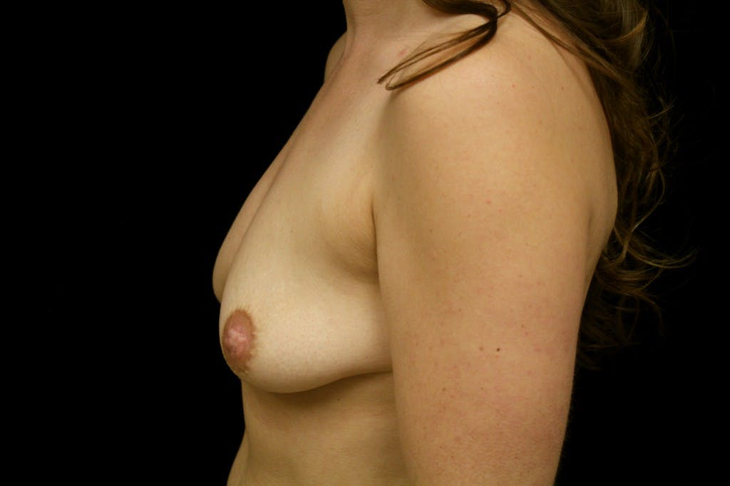 Breast Augmentation Gallery - Patient 39235565 - Image 3