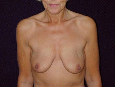 Vertical and Inverted T Breast Lift Gallery - Patient 39235566 - Image 1