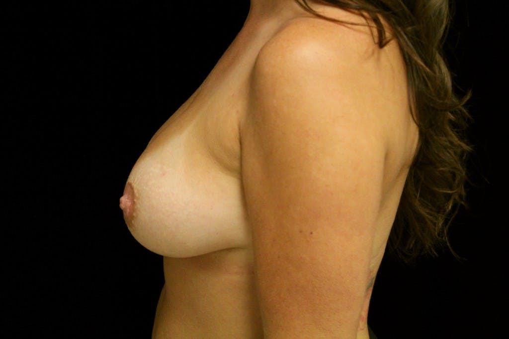Breast Augmentation Gallery - Patient 39235565 - Image 4