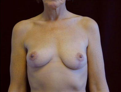 Vertical and Inverted T Breast Lift Gallery - Patient 39235566 - Image 2