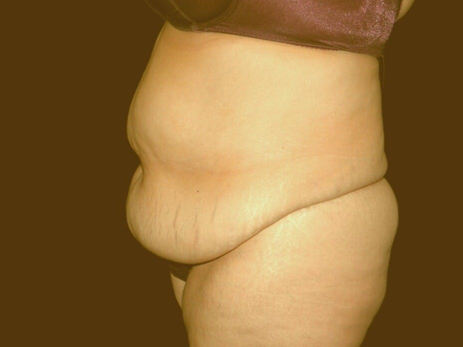 Tummy Tuck Gallery - Patient 39235569 - Image 7