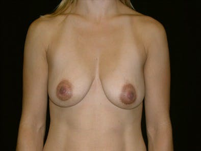 Revision Breast Surgery Gallery - Patient 39235567 - Image 1