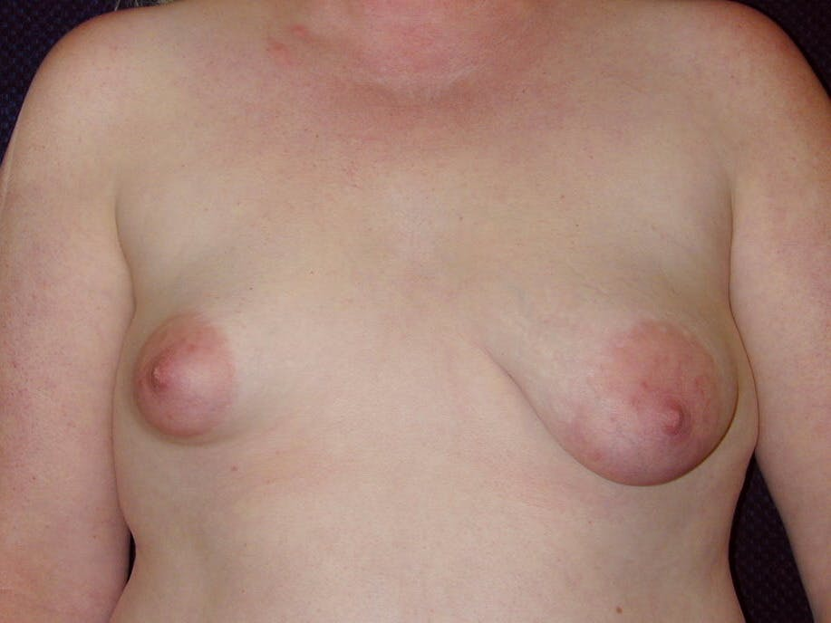 Peri-areolar Breast Lift Gallery - Patient 39235590 - Image 1