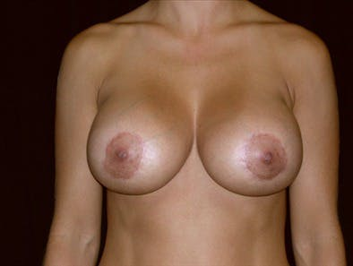 Revision Breast Surgery Gallery - Patient 39235567 - Image 2