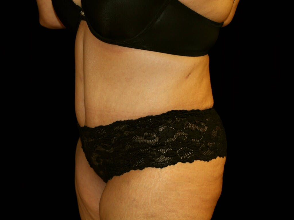 Tummy Tuck Gallery - Patient 39235569 - Image 8