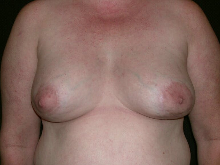Peri-areolar Breast Lift Gallery - Patient 39235590 - Image 2