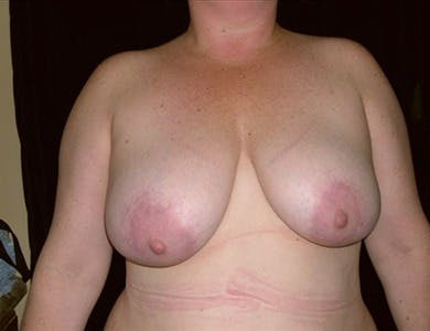 Breast Reduction Vertical Gallery - Patient 39235571 - Image 1