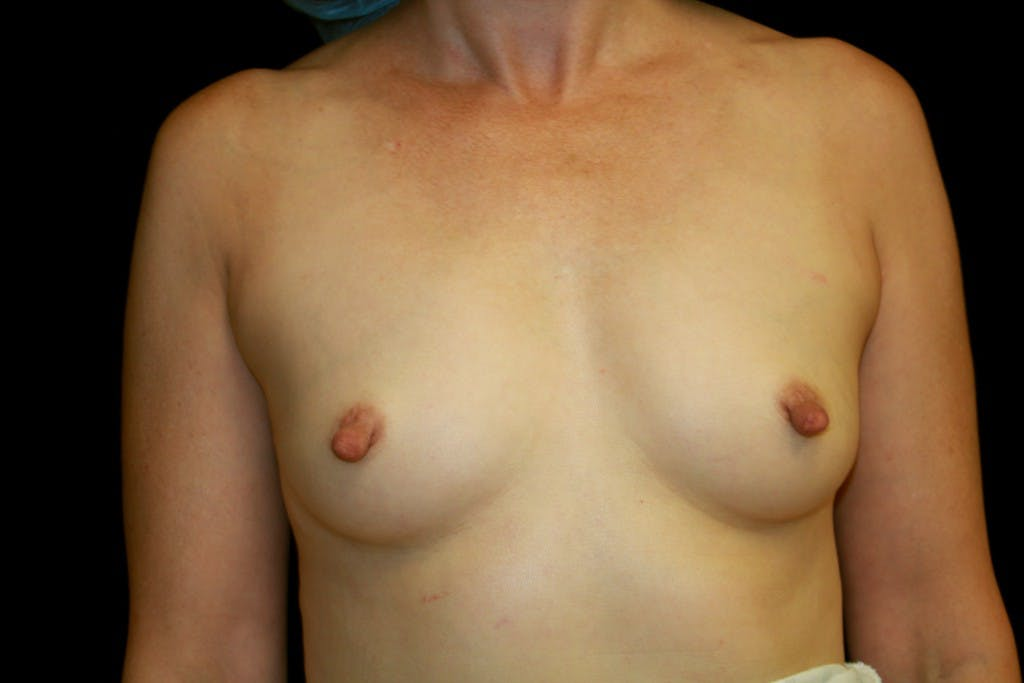 Breast Augmentation Gallery - Patient 39235585 - Image 1
