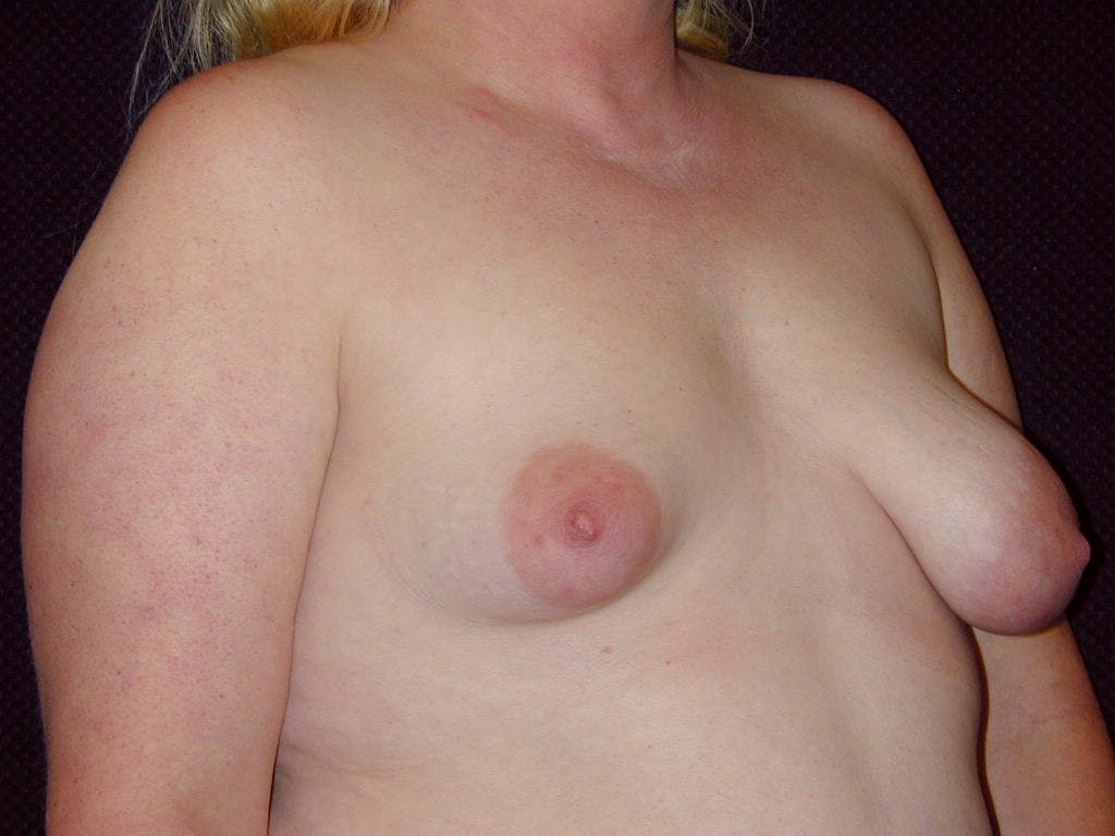 Peri-areolar Breast Lift Gallery - Patient 39235590 - Image 3