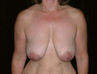 Vertical and Inverted T Breast Lift Gallery - Patient 39235572 - Image 1