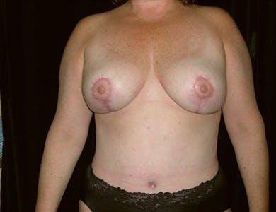 Breast Reduction Vertical Gallery - Patient 39235571 - Image 2