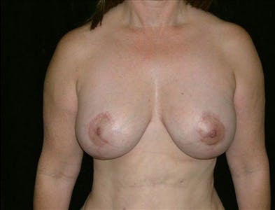Vertical and Inverted T Breast Lift Gallery - Patient 39235572 - Image 2