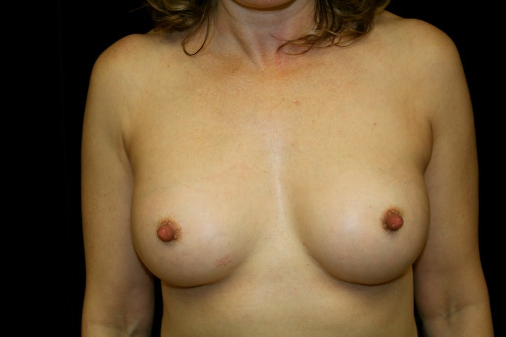 Breast Augmentation Gallery - Patient 39235585 - Image 2