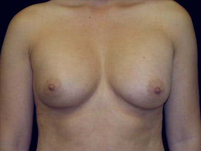 Revision Breast Surgery Gallery - Patient 39235579 - Image 1