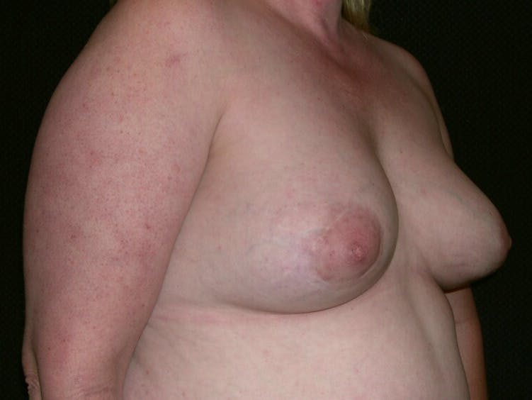 Peri-areolar Breast Lift Gallery - Patient 39235590 - Image 4