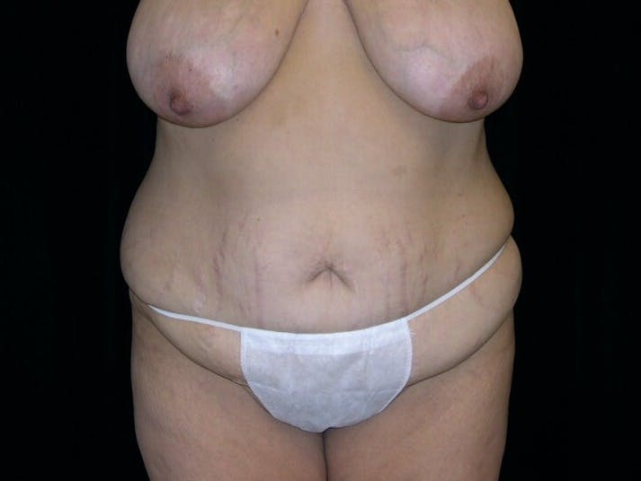 Tummy Tuck Gallery - Patient 39235594 - Image 1