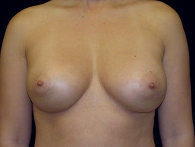Revision Breast Surgery Gallery - Patient 39235579 - Image 2