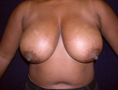 Breast Reduction T Incision Gallery - Patient 39235580 - Image 1