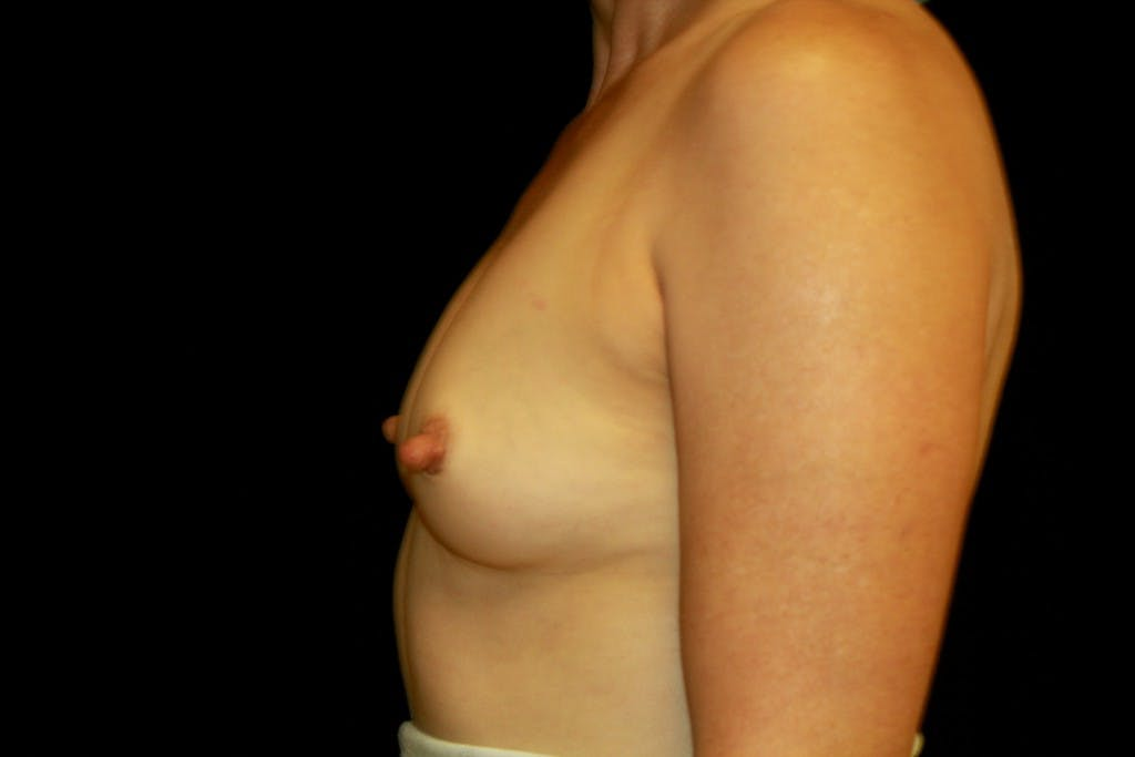 Breast Augmentation Gallery - Patient 39235585 - Image 3