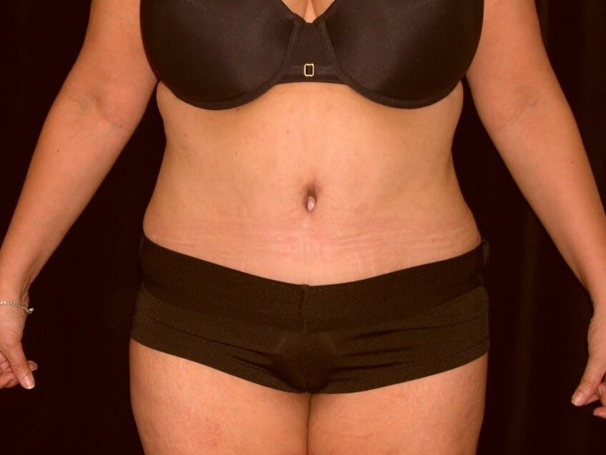 Tummy Tuck Gallery - Patient 39235594 - Image 2