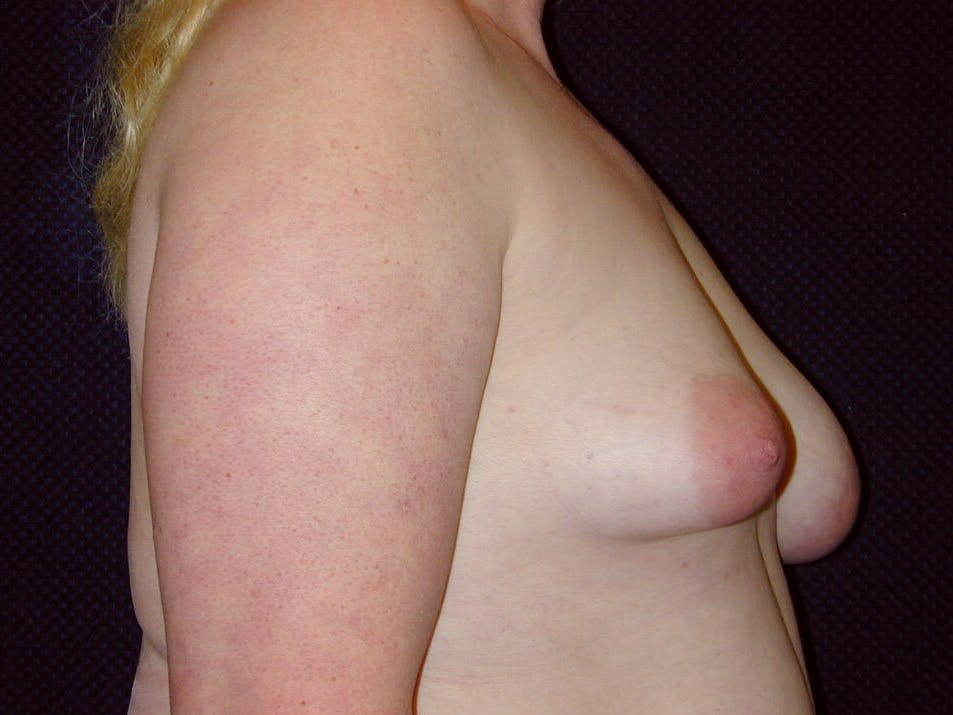 Peri-areolar Breast Lift Gallery - Patient 39235590 - Image 5