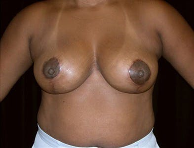 Breast Reduction T Incision Gallery - Patient 39235580 - Image 2