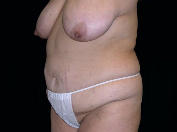 Tummy Tuck Gallery - Patient 39235594 - Image 3