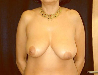 Breast Reduction Vertical Gallery - Patient 39235582 - Image 1