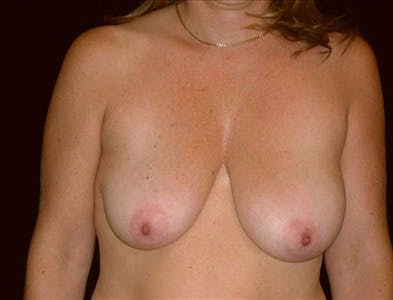 Vertical and Inverted T Breast Lift Gallery - Patient 39235583 - Image 1