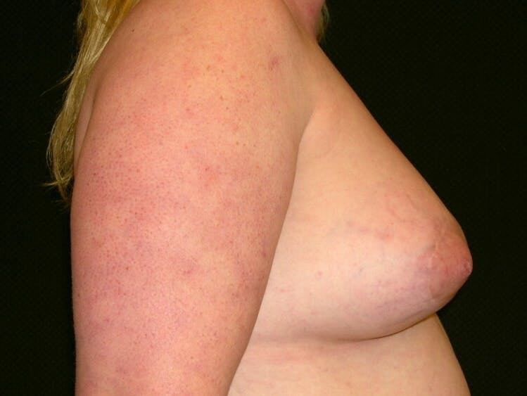 Peri-areolar Breast Lift Gallery - Patient 39235590 - Image 6