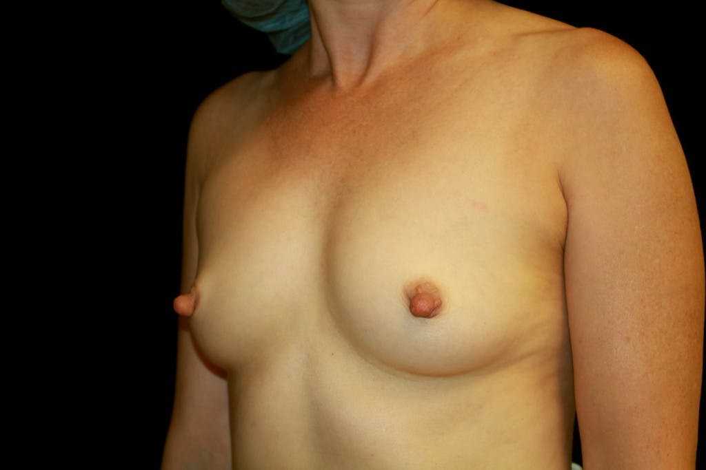 Breast Augmentation Gallery - Patient 39235585 - Image 5