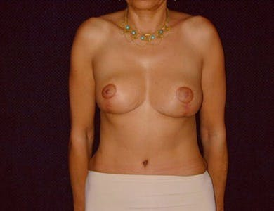 Breast Reduction Vertical Gallery - Patient 39235582 - Image 2
