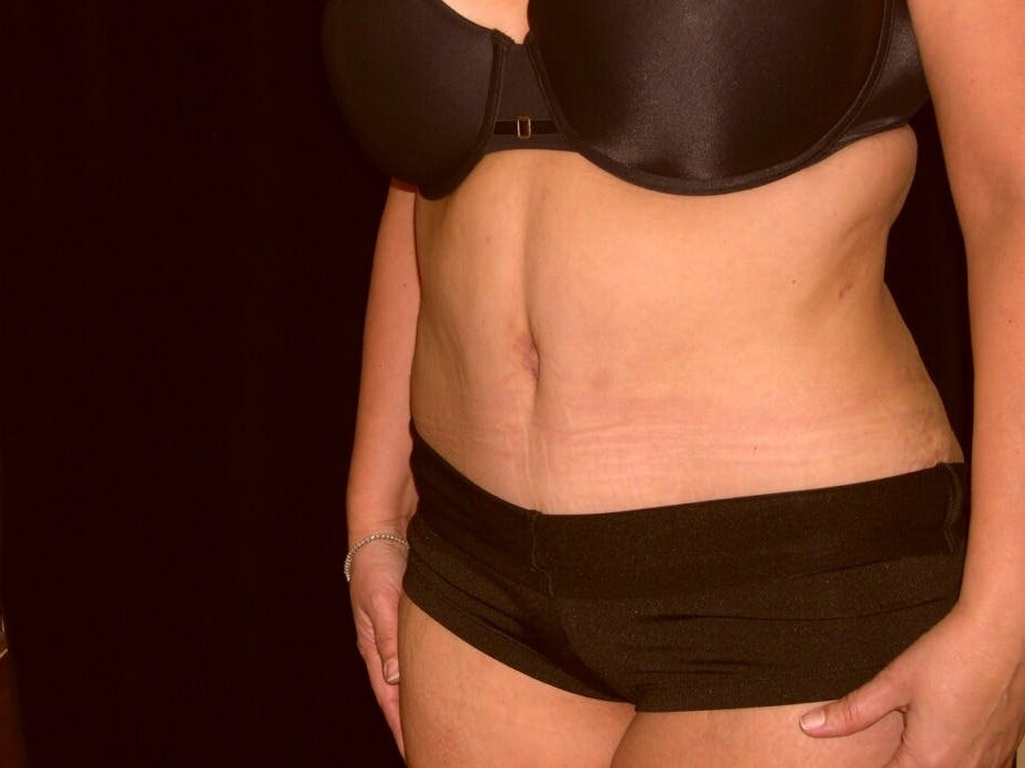 Tummy Tuck Gallery - Patient 39235594 - Image 4