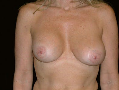 Revision Breast Surgery Gallery - Patient 39235584 - Image 1