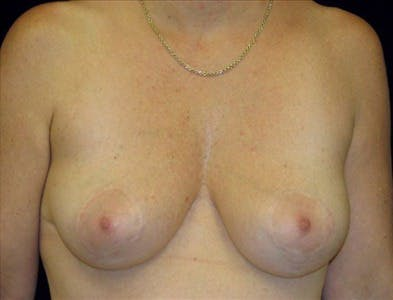 Vertical and Inverted T Breast Lift Gallery - Patient 39235583 - Image 2