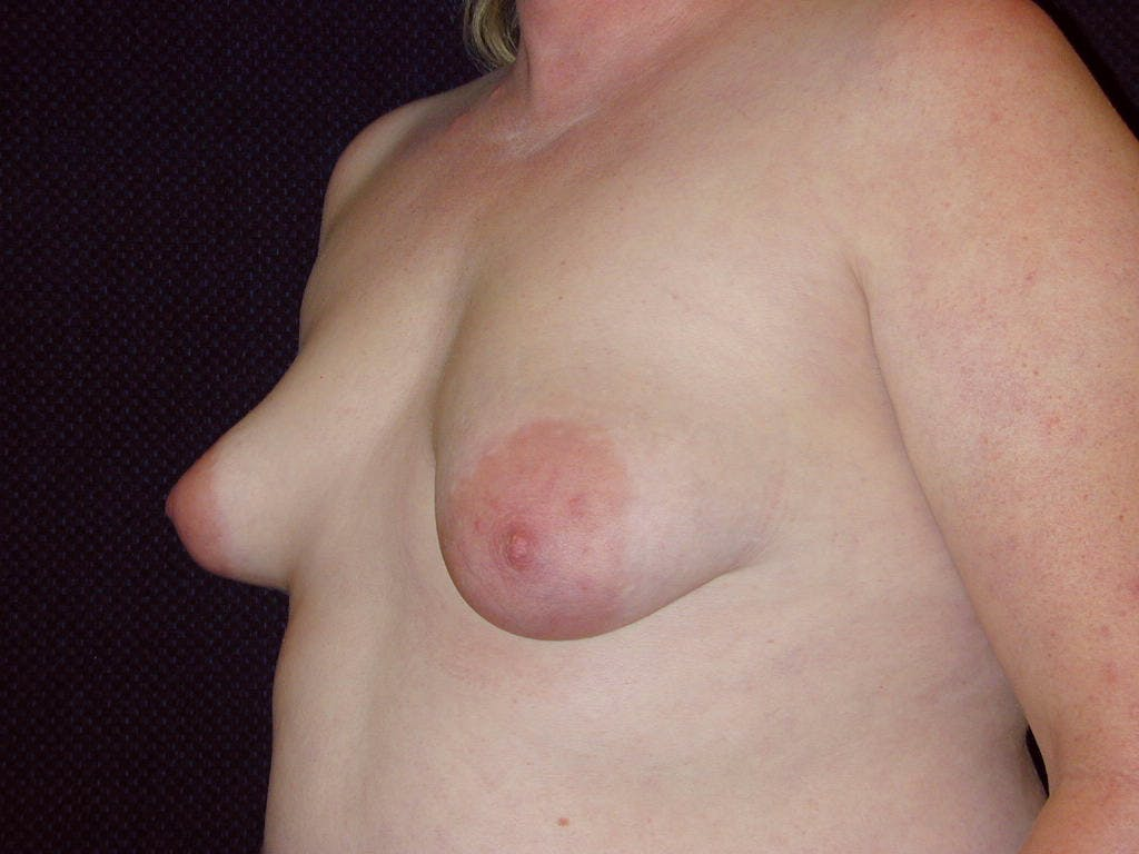 Peri-areolar Breast Lift Gallery - Patient 39235590 - Image 7