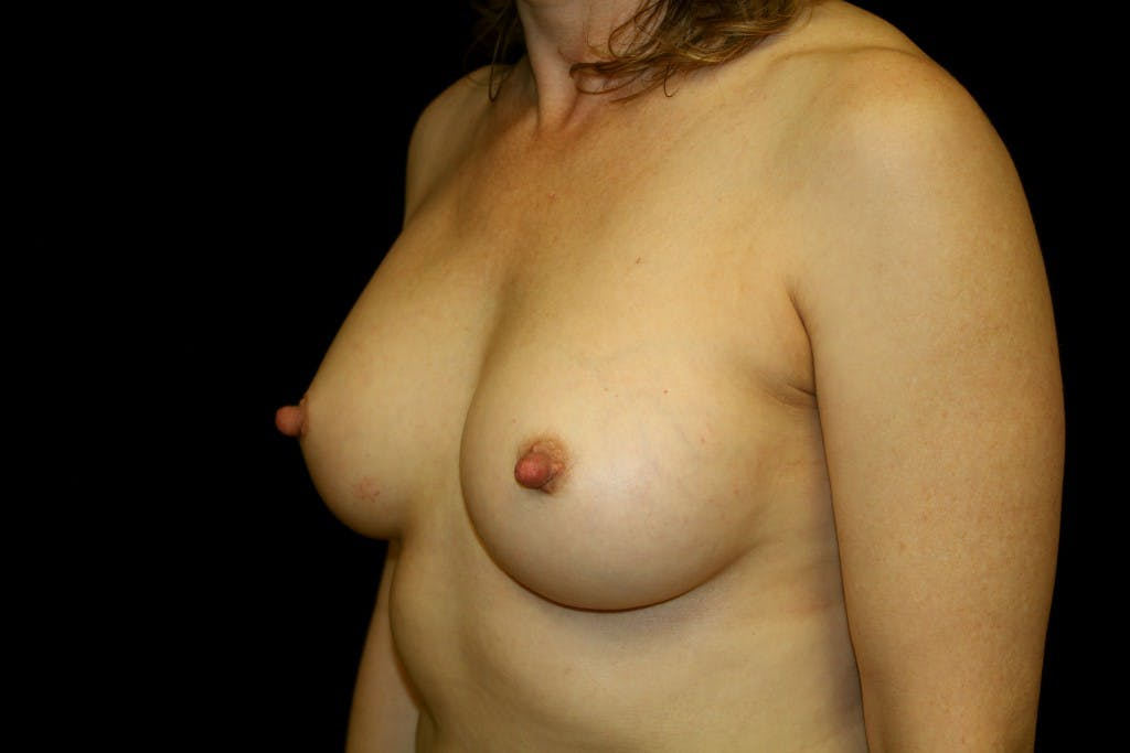 Breast Augmentation Gallery - Patient 39235585 - Image 6