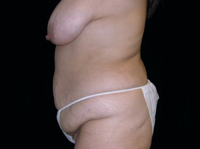 Tummy Tuck Gallery - Patient 39235594 - Image 5