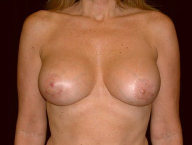 Revision Breast Surgery Gallery - Patient 39235584 - Image 2
