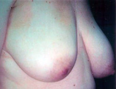 Breast Reduction T Incision Gallery - Patient 39235586 - Image 1