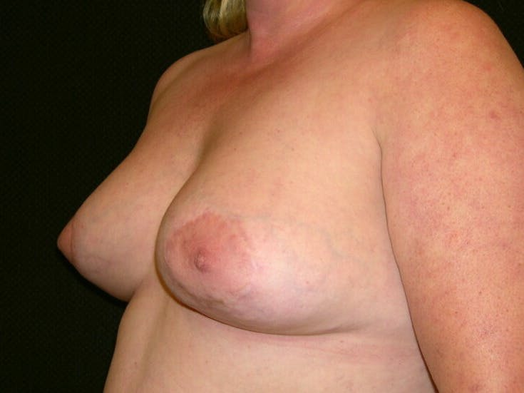 Peri-areolar Breast Lift Gallery - Patient 39235590 - Image 8