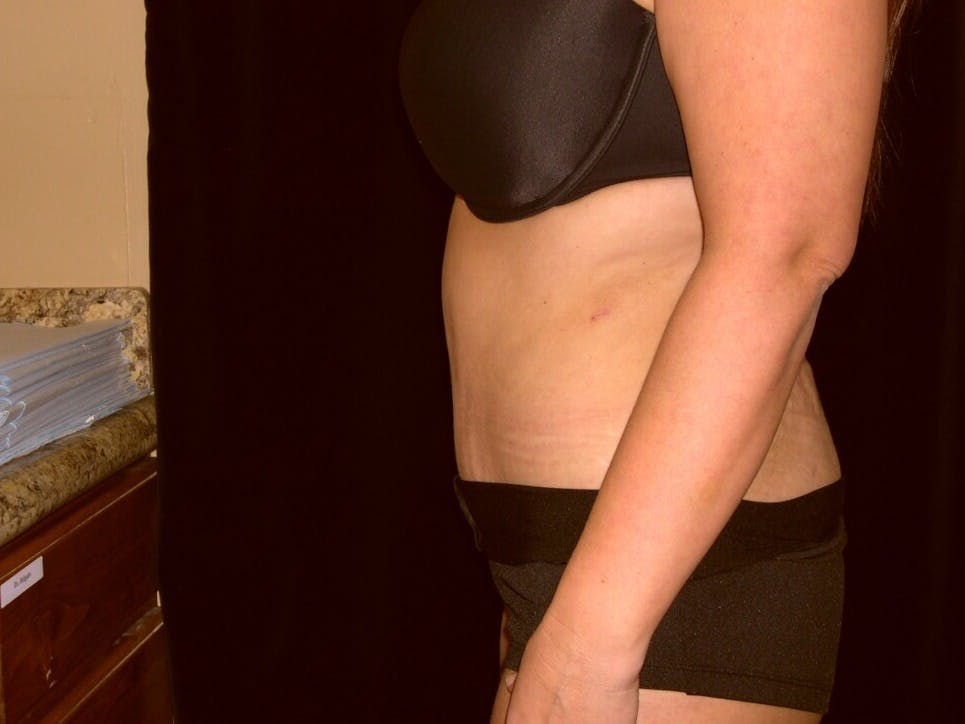 Tummy Tuck Gallery - Patient 39235594 - Image 6