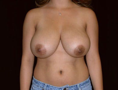 Breast Reduction Vertical Gallery - Patient 39235588 - Image 1