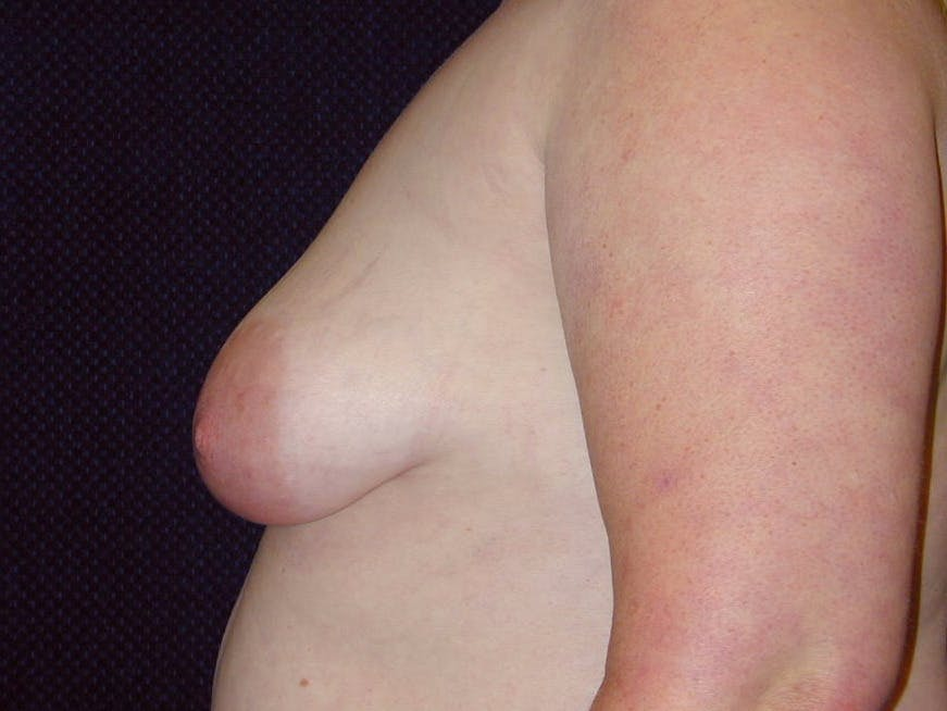Peri-areolar Breast Lift Gallery - Patient 39235590 - Image 9