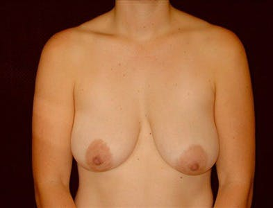 Vertical and Inverted T Breast Lift Gallery - Patient 39235589 - Image 1