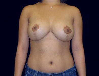 Breast Reduction Vertical Gallery - Patient 39235588 - Image 2