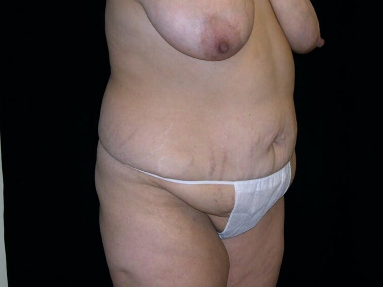 Tummy Tuck Gallery - Patient 39235594 - Image 7