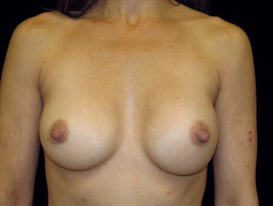 Revision Breast Surgery Gallery - Patient 39235591 - Image 1